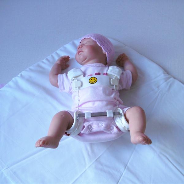 Hüftdysplasie beim Baby: Alles, was Du wissen musst